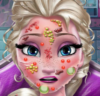 Аллергия у принцессы Эльзы